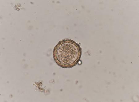 inhabits: Egg of Parasitic nematode worm (roundworm) Ascaris lumbricoides which inhabits human intestine and causes disease ascariasis Stock Photo