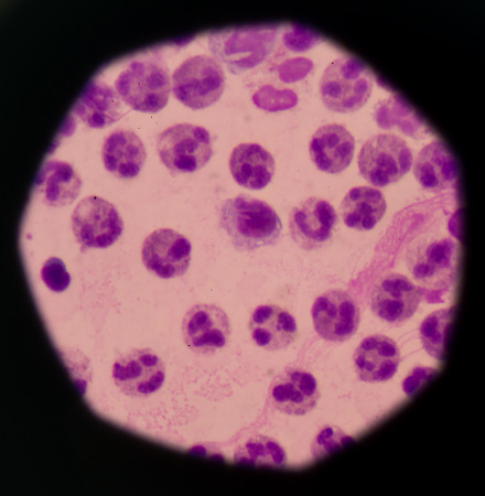 Cancer Cell in human showing abnormal cells.