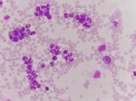 neutrophil: Blood cells background.
