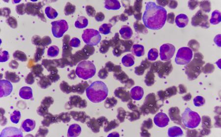 celulas humanas: Las células sanguíneas de fondo. Foto de archivo