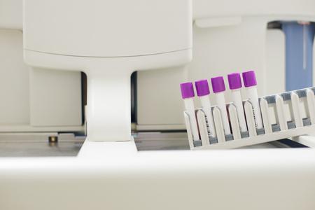 thrombocytopenia: CBC Blood test tube in laboratory. Stock Photo