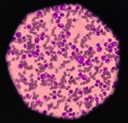 Leukemia blood cells medical science background concept.
