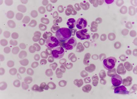 neutrophil: Leukemia blood cells medical science background concept.