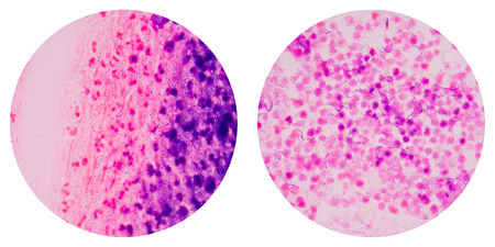 sain: Bacteria  cells on Gram sain medical science background concept. Stock Photo