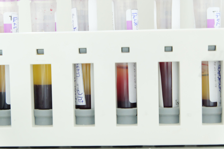 biological sample tube in the lab of hematology