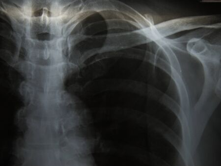 Pulmonary Tuberculosis ( TB ) : Chest x-ray show alveolar infiltration at both lung due to mycobacterium tuberculosis infection Stock Photo