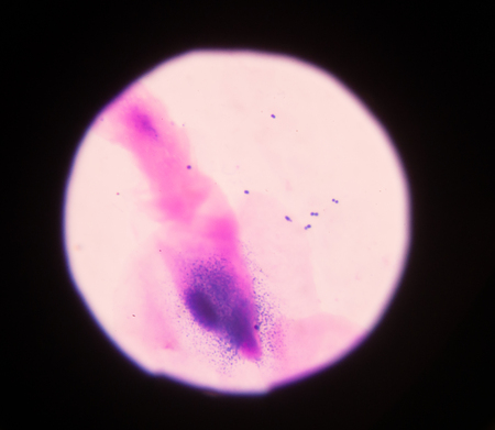 pili: Bacteria cells on Gram stain science background. Stock Photo