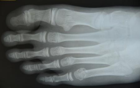 Cierre de fondo de ciencia médica de rayos x Foto de archivo - 76893989