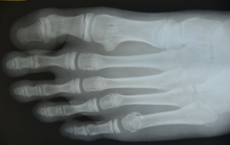 Close up foot  x-ray medical science background