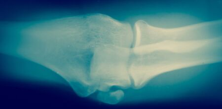 Close up  bone  x-ray medical science background Stock Photo
