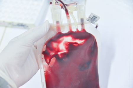 Blood in the blood bag for the patient Stock Photo