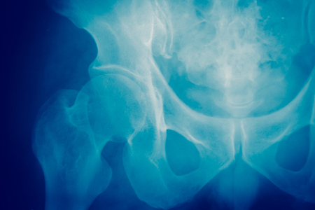 Close up bone  x-ray medical science background