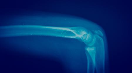 anatomy x ray: Close up bone  x-ray medical science background
