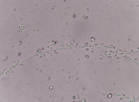 eukaryotic: Yeast cells in urine specimens Medical science background.