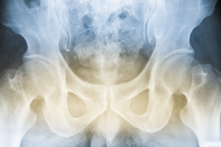 bone X-ray on dark background medical concept. Stock Photo