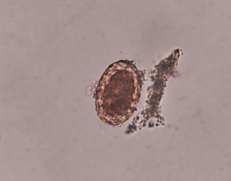 Parasite Ascaris lumbricoides egg in stool exam.