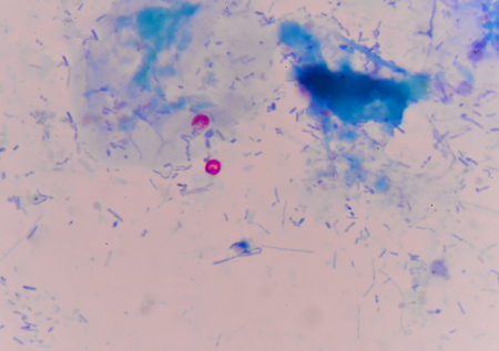 red cells cryptosporidium oocyte on blue background. Stock Photo