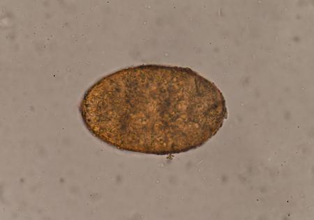 Egg of parasite in stool exam.