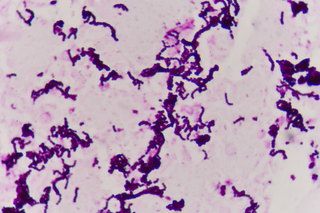 Gram staining, also called Grams method, is a method of differentiating bacterial species into two large groups