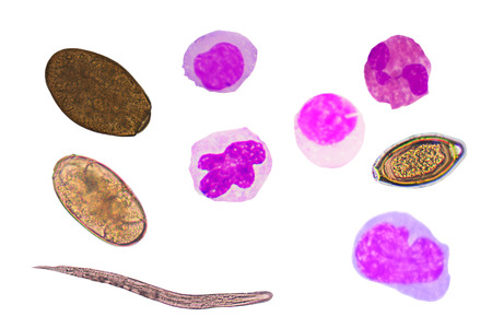 blood cells and parasite eggs on white background.