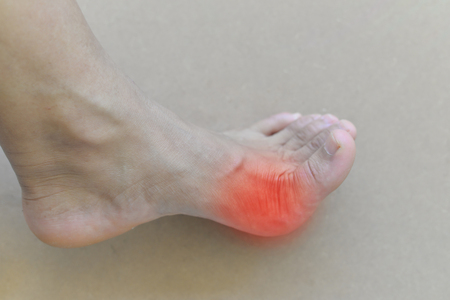 Foot of gout patient.Close up Painful and inflamed gout. Standard-Bild