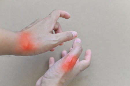 Hand of gout patient.Close up Painful and inflamed gout.