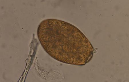 Big size Fasciola parasite egg common liver fluke.