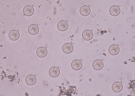 Entamoeba coli Protozoa in stool exam.