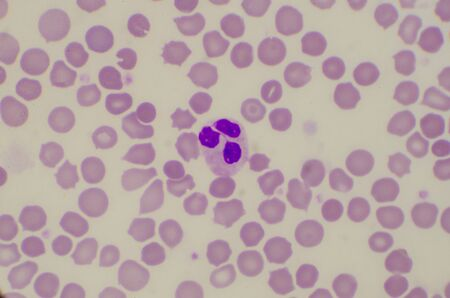 Close up normal neutrophil on red blood cells background.
