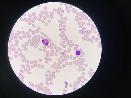Comparison white blood cell Eosinophil and Lytmphocyte laboratory science concept.