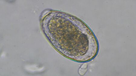 Macro Gnathostoma spinigerum eggs in stool examination.Laboratory science concept.