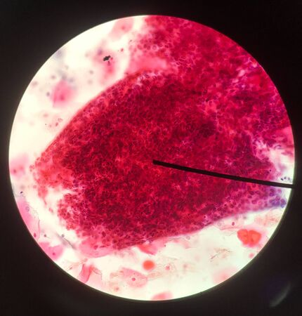 Cells in reproductive female cytology and histology education concept.