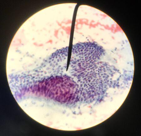 Zellen in der reproduktiven weiblichen Zytologie und Histologiekonzeptmedizin. Standard-Bild