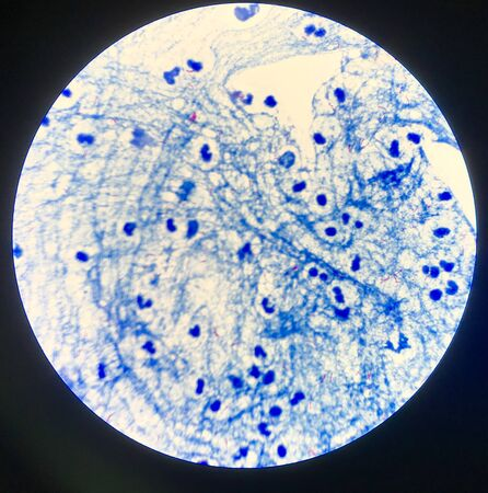 Red cells Mycobacterium tuberculosis in Sputum  positive 3 .
