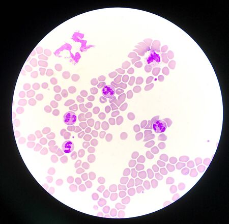 Neutrophil white blood cells on red blood cells background sign of infection.