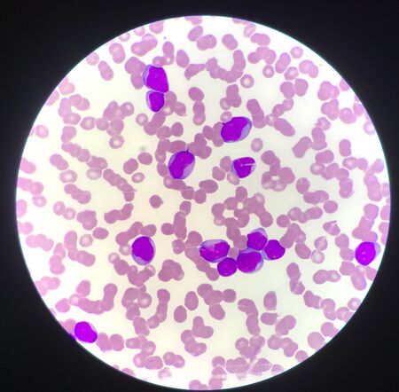 Immature cell or bast cell in leukemia patiens blood smear. Stock Photo