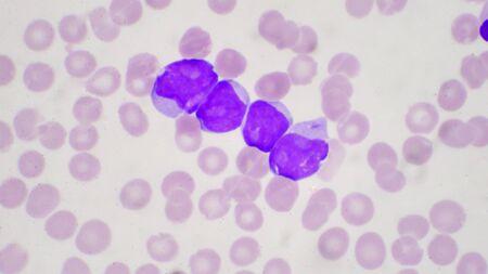 Células blásticas en leucemia pateins en frotis de sangre cbc.