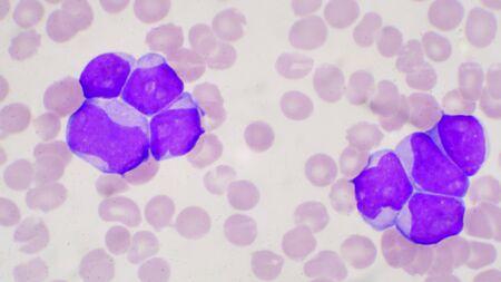 Células blásticas en leucemia pateins en frotis de sangre cbc. Foto de archivo