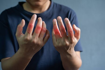 Painful hands patient arthritis on grey background.