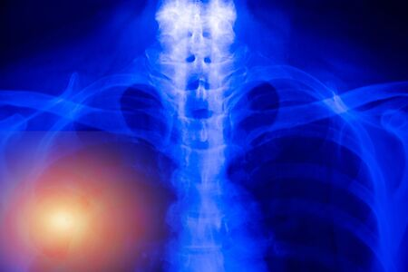 Chest x-ray of patient alveoli damage infected coronavirus or covid-19 concept.