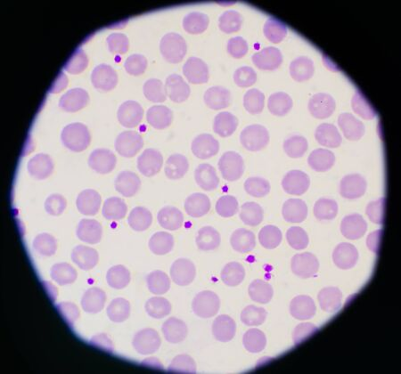 Normal red blood cells background laboratory concept.