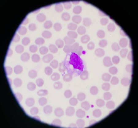 Red blood cells and white blood cells background laboratory concept.