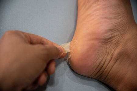 Close up foot of xerosis damage skin. Stockfoto