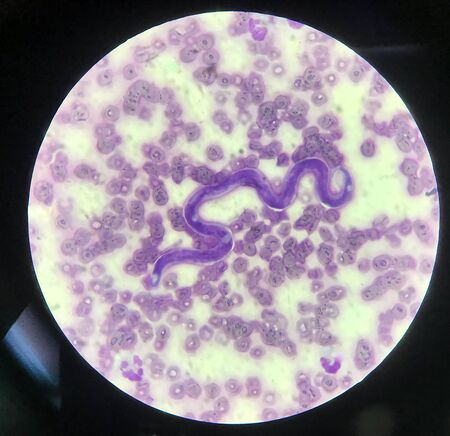 Blood parasite microphilaria on red blood cells background.