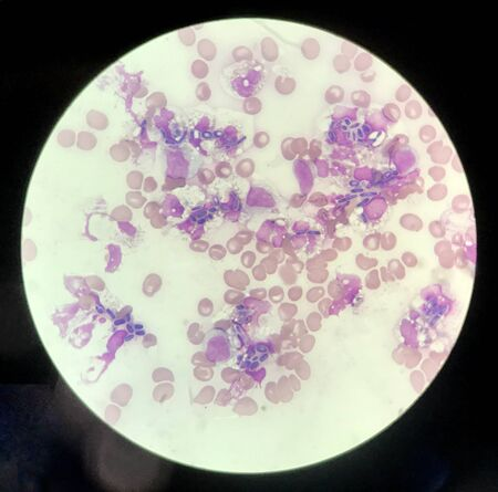 Yeast cells phagocytosis by white blood cell in blood smear.Fungus blood infection medical science background.