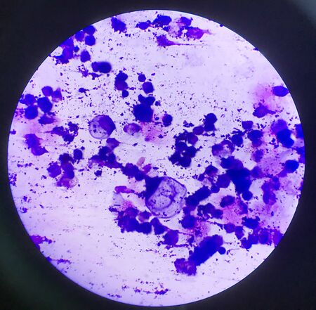 Atypical cells in body fluid smear.Laboratory science concept.