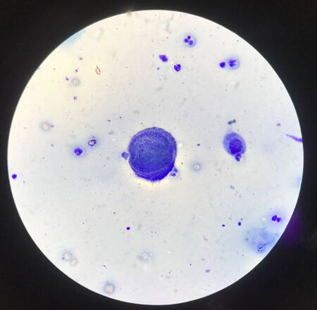 Multinucleated cell in Tzanck test finding with microscope in laboratory.
