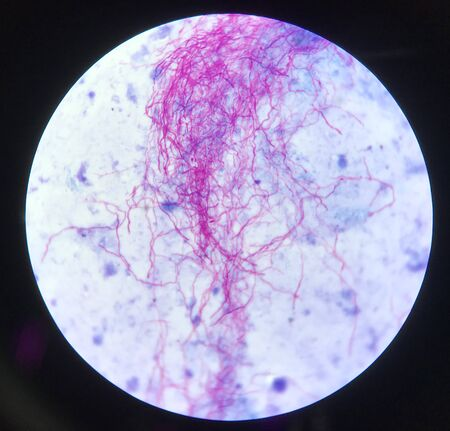 Red branching mycobacterium tuberculosis on blue background in modified acid fast bacilli stain.finding with microscope laboratory background.