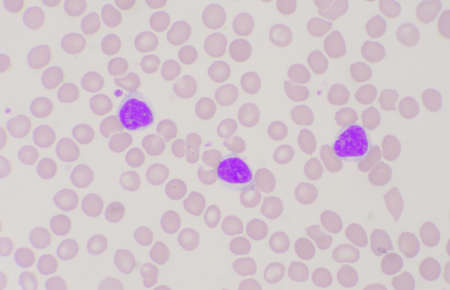 Group of blast cells in leukemia blood smear background.
