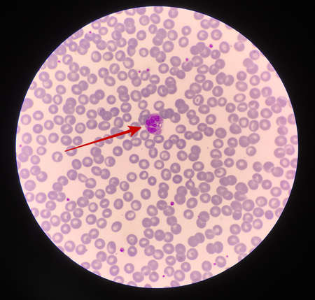 Red arrow showing neutrophil with toxic granule active PMN.
